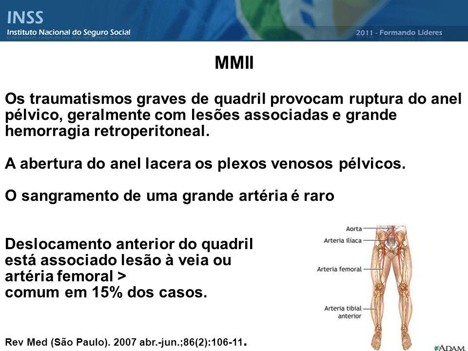 MMII Os traumatismos graves de quadril provocam ruptura do anel pélvico, geralmente com lesões associadas e grande hemorragia retroperitoneal.