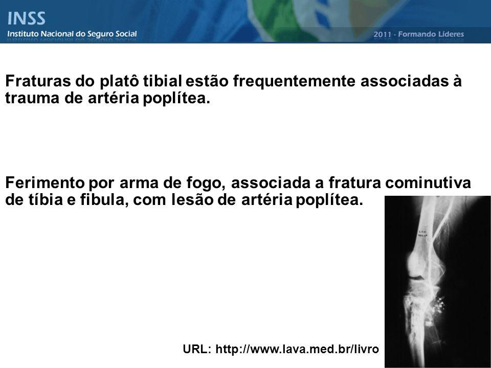 Fraturas do platô tibial estão frequentemente associadas à trauma de artéria poplítea.