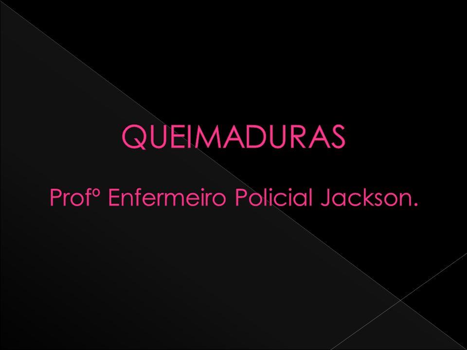 QUEIMADURAS Profº Enfermeiro Policial Jackson.