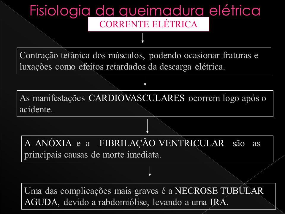 Fisiologia da queimadura elétrica