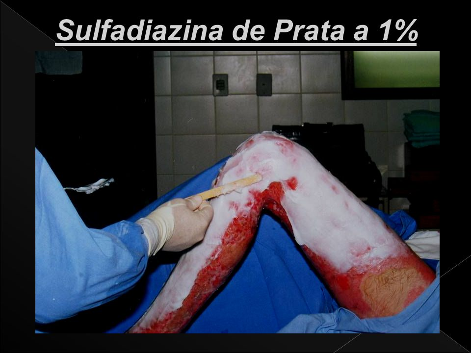 Sulfadiazina de Prata a 1%