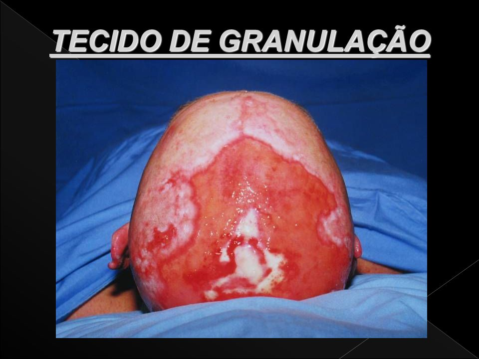 TECIDO DE GRANULAÇÃO