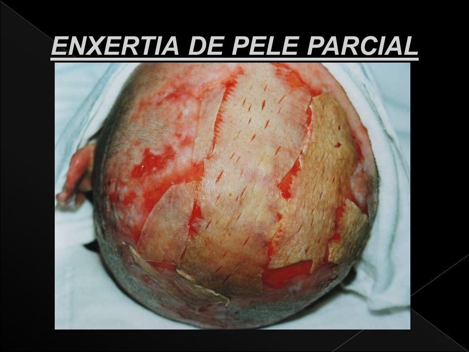 ENXERTIA DE PELE PARCIAL