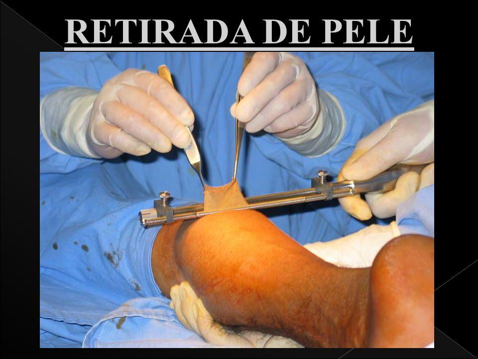 RETIRADA DE PELE