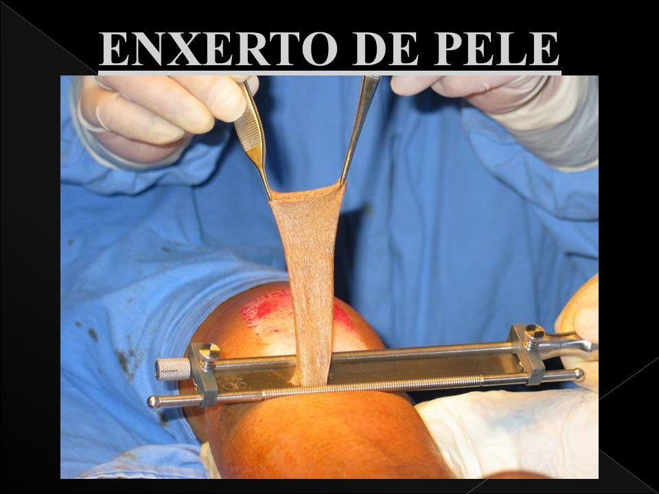 ENXERTO DE PELE