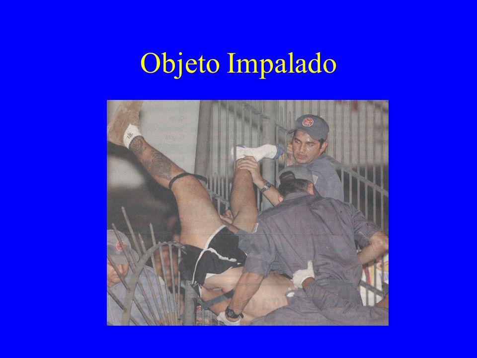 Objeto Impalado