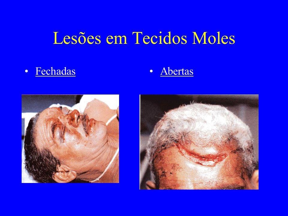 Lesões em Tecidos Moles