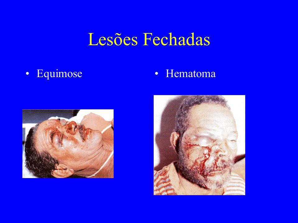 Lesões Fechadas Equimose Hematoma