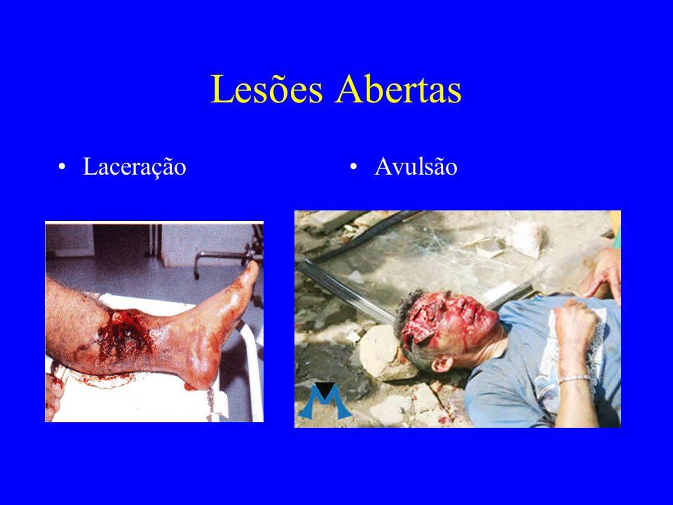 Lesões Abertas Laceração Avulsão