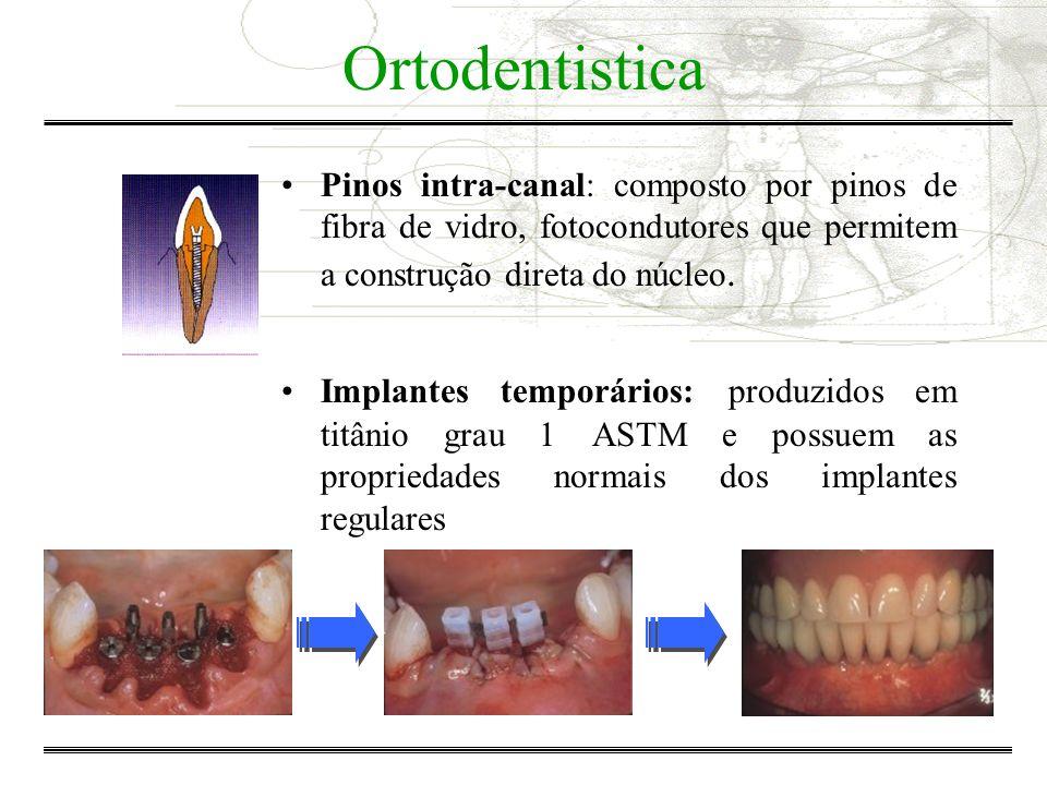Ortodentistica Pinos intra-canal: composto por pinos de fibra de vidro, fotocondutores que permitem a construção direta do núcleo.
