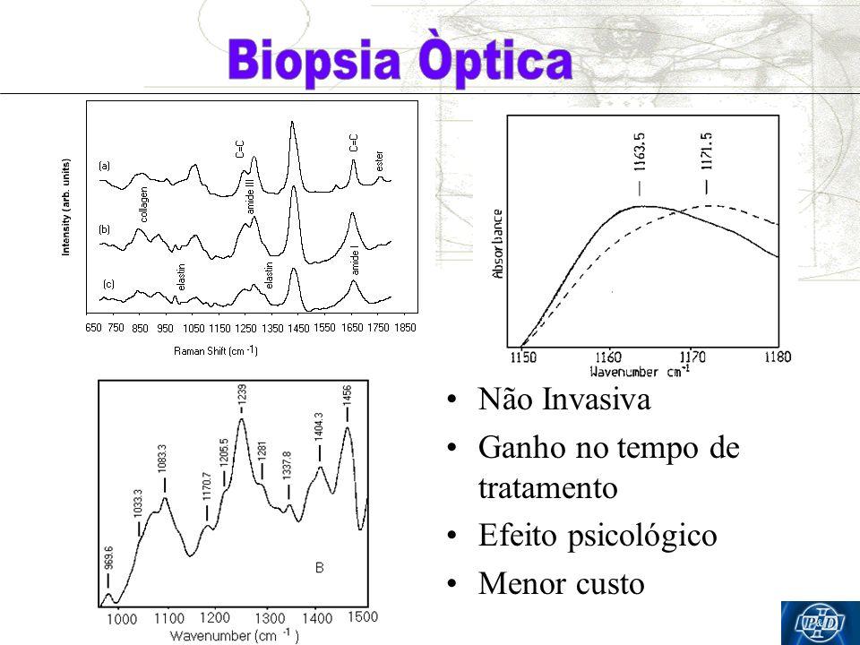 Biopsia Òptica Não Invasiva Ganho no tempo de tratamento
