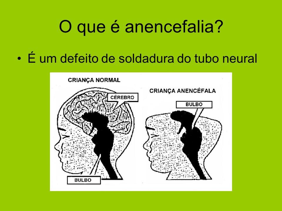 O que é anencefalia É um defeito de soldadura do tubo neural