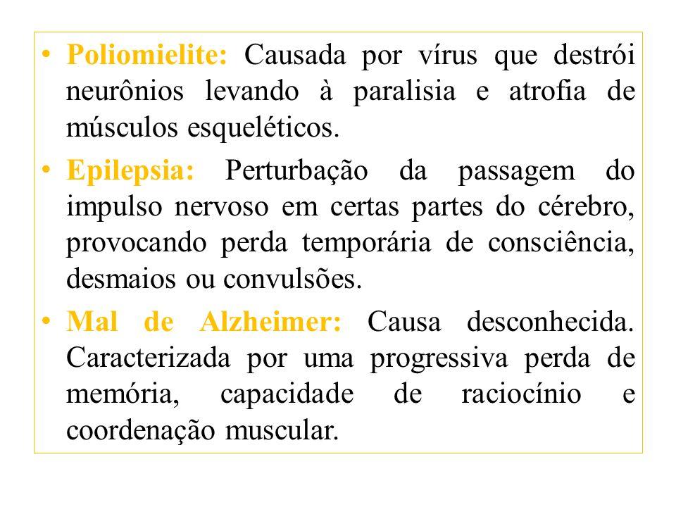 Poliomielite: Causada por vírus que destrói neurônios levando à paralisia e atrofia de músculos esqueléticos.