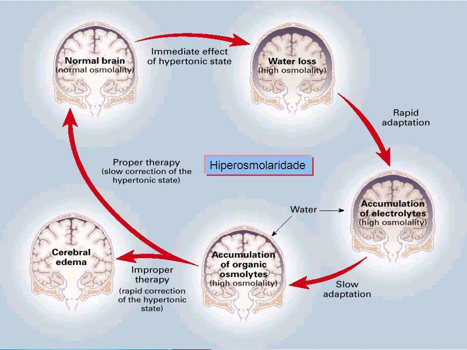 Hiperosmolaridade