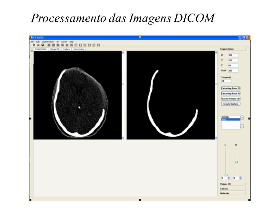 Processamento das Imagens DICOM