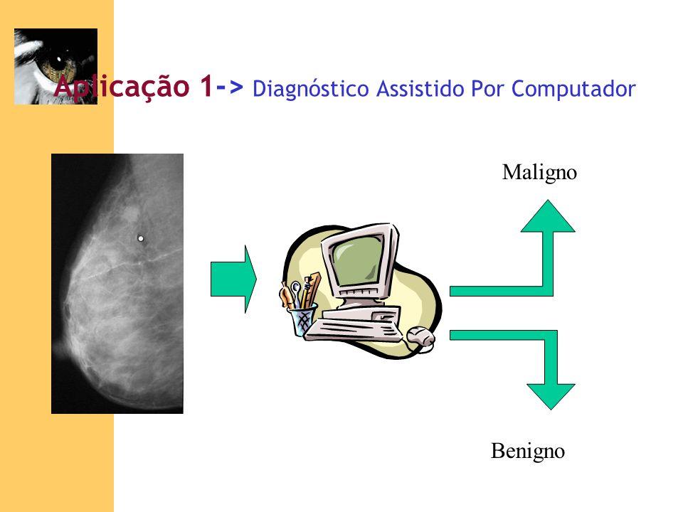 Aplicação 1-> Diagnóstico Assistido Por Computador