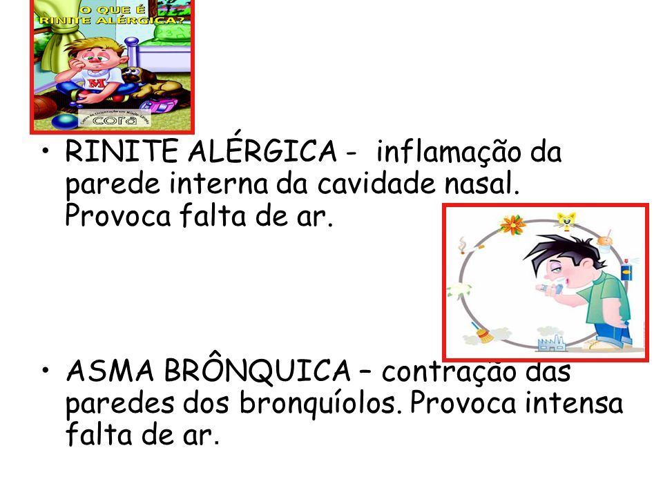 RINITE ALÉRGICA - inflamação da parede interna da cavidade nasal