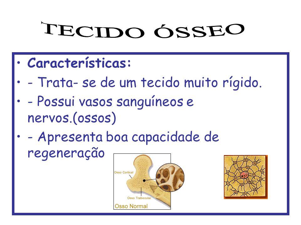 TECIDO ÓSSEO Características: - Trata- se de um tecido muito rígido.