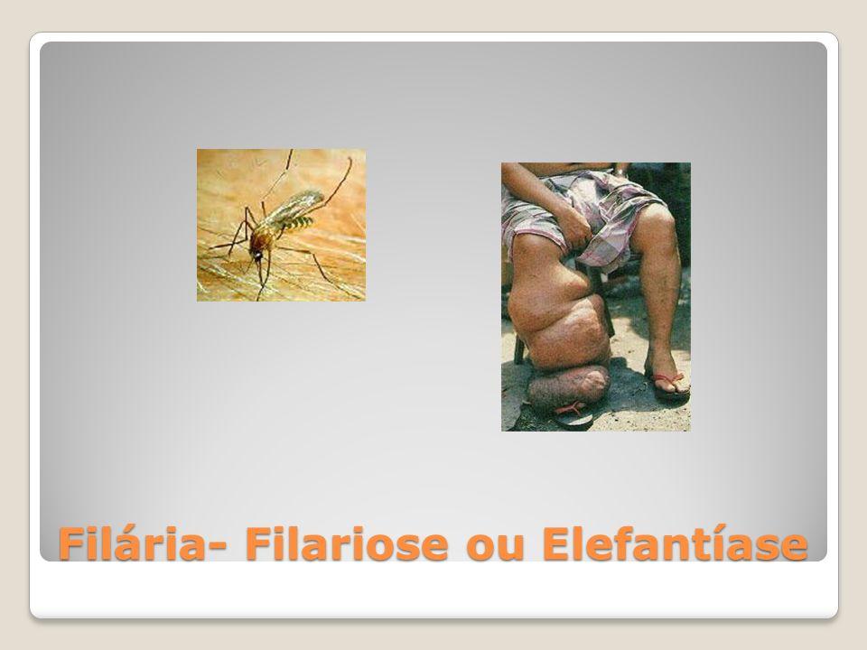 Filária- Filariose ou Elefantíase