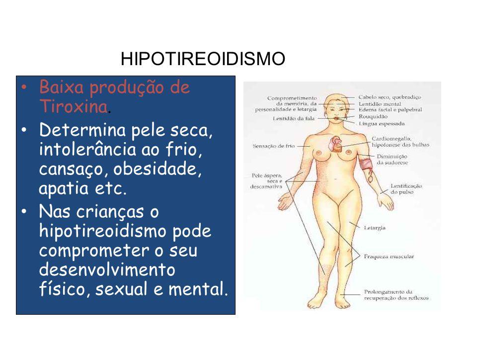 HIPOTIREOIDISMO Baixa produção de Tiroxina.