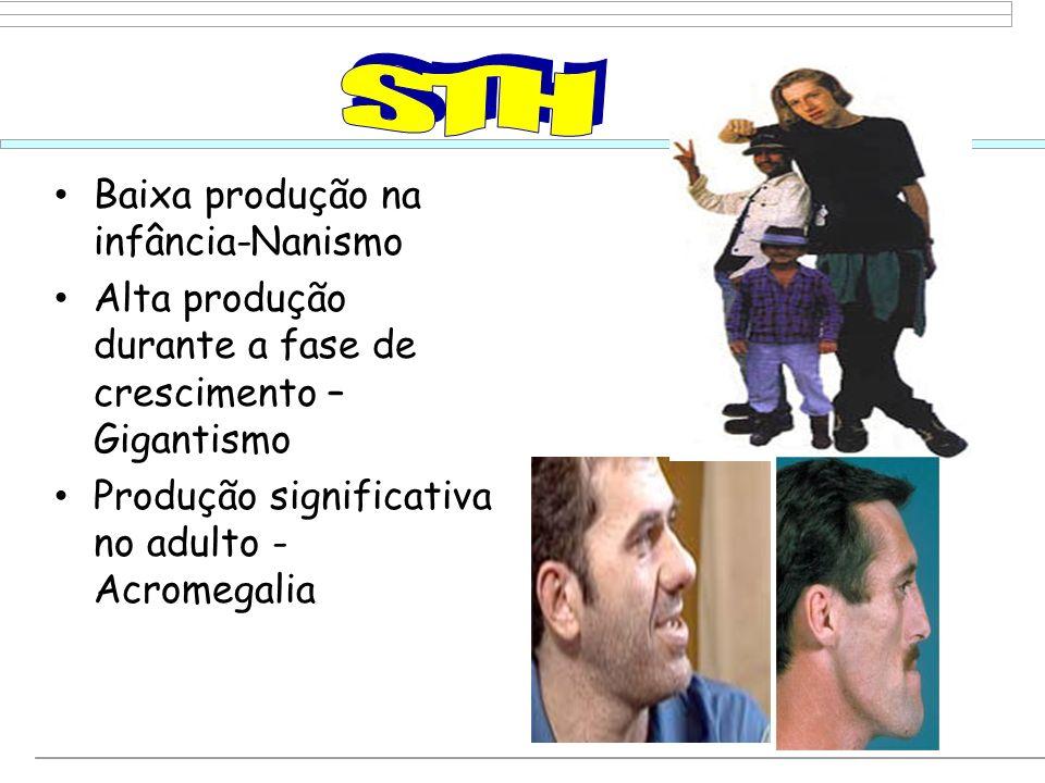 STH Baixa produção na infância-Nanismo