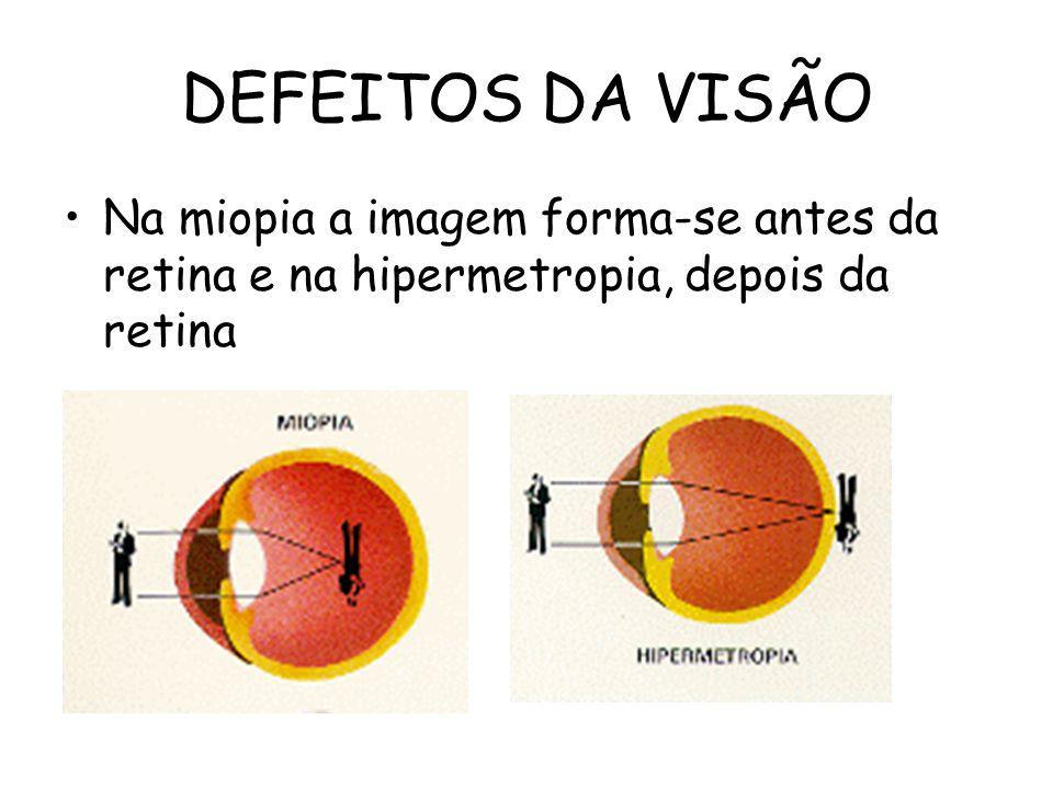 DEFEITOS DA VISÃO Na miopia a imagem forma-se antes da retina e na hipermetropia, depois da retina
