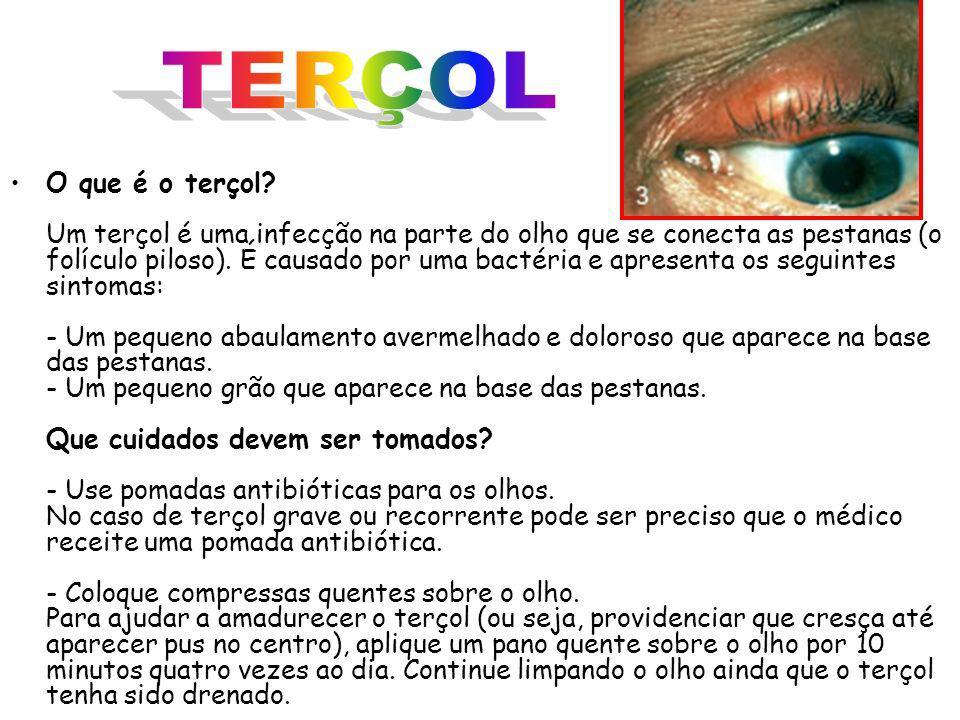 TERÇOL