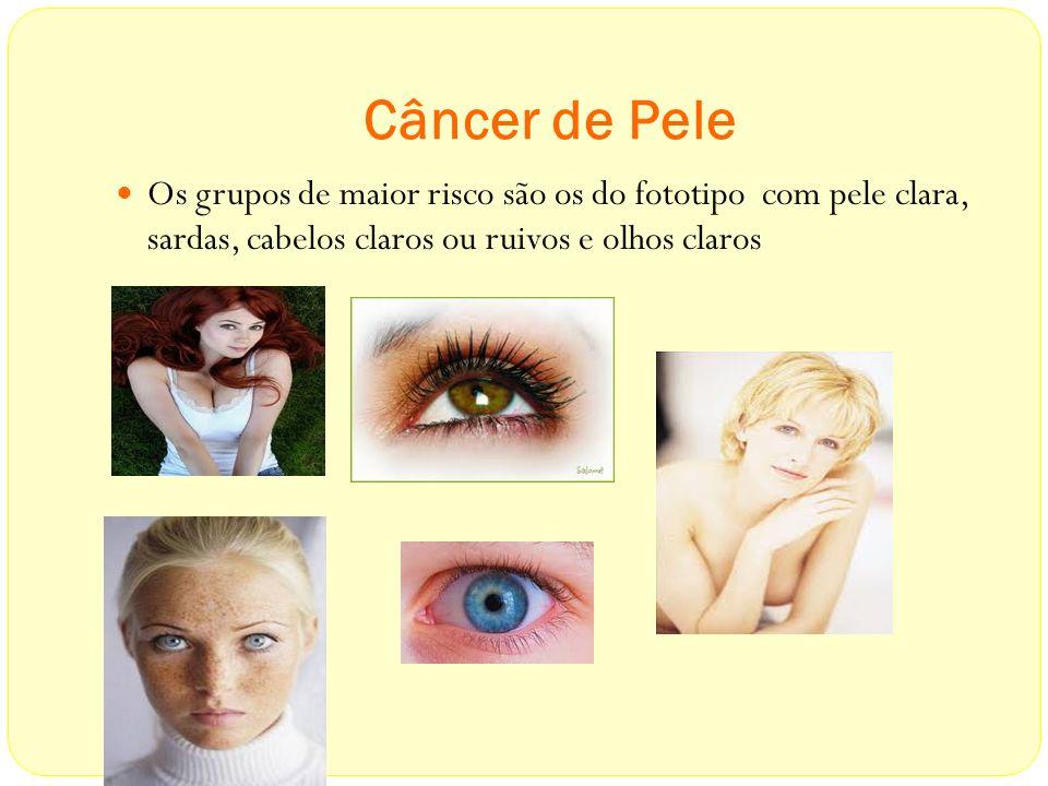 Câncer de Pele Os grupos de maior risco são os do fototipo com pele clara, sardas, cabelos claros ou ruivos e olhos claros.