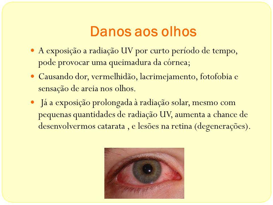 Danos aos olhos A exposição a radiação UV por curto período de tempo, pode provocar uma queimadura da córnea;
