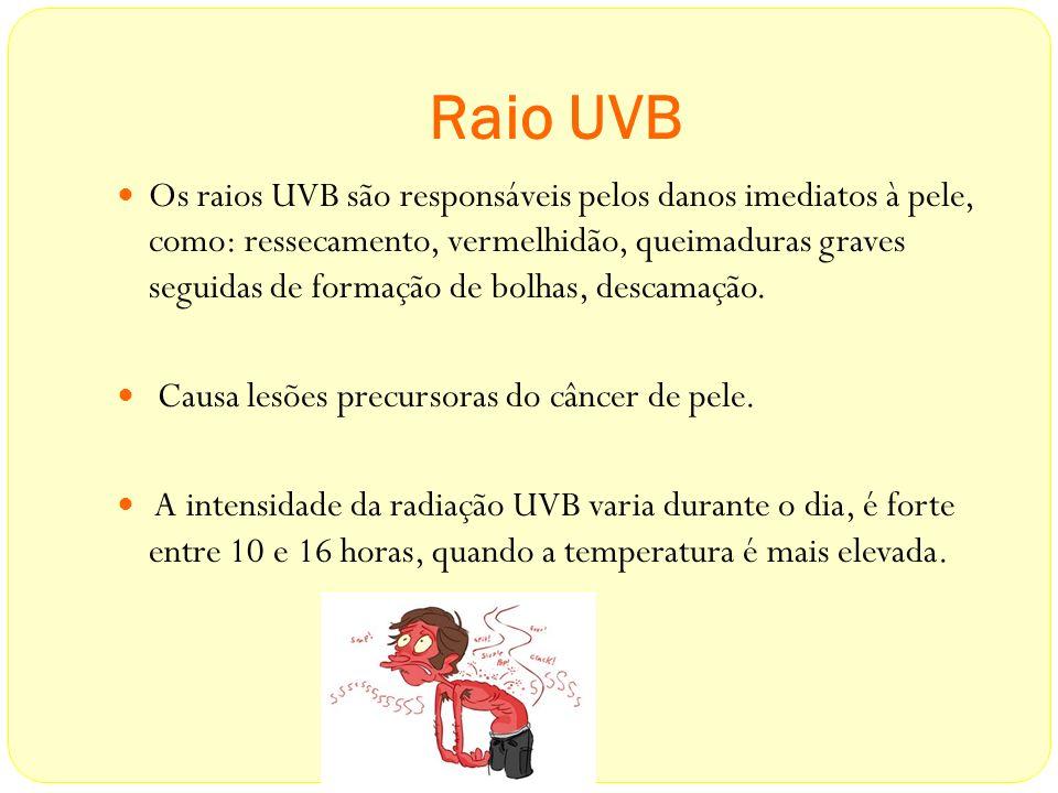 Raio UVB