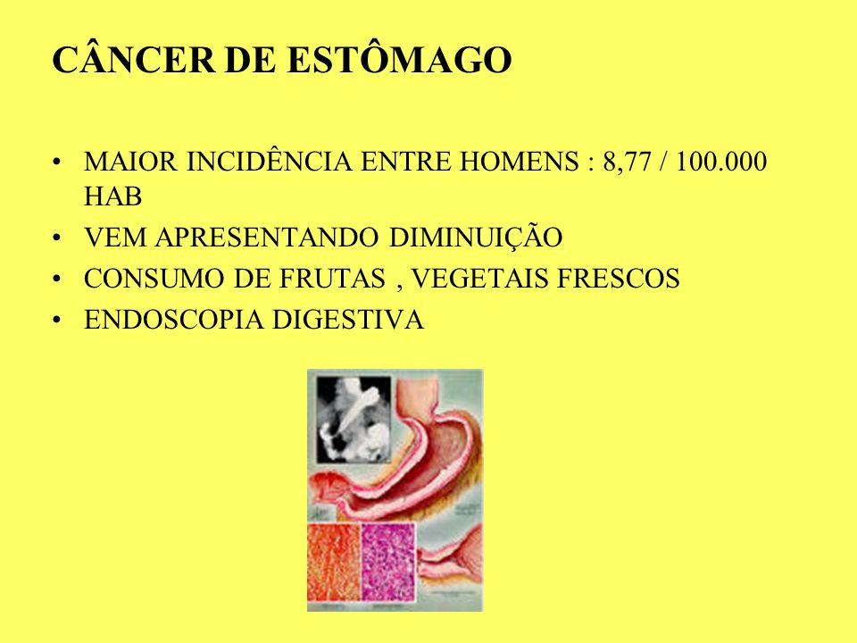 CÂNCER DE ESTÔMAGO MAIOR INCIDÊNCIA ENTRE HOMENS : 8,77 / 100.000 HAB