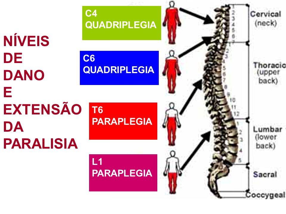 NÍVEIS DE DANO E EXTENSÃO DA PARALISIA C4 QUADRIPLEGIA C6 QUADRIPLEGIA