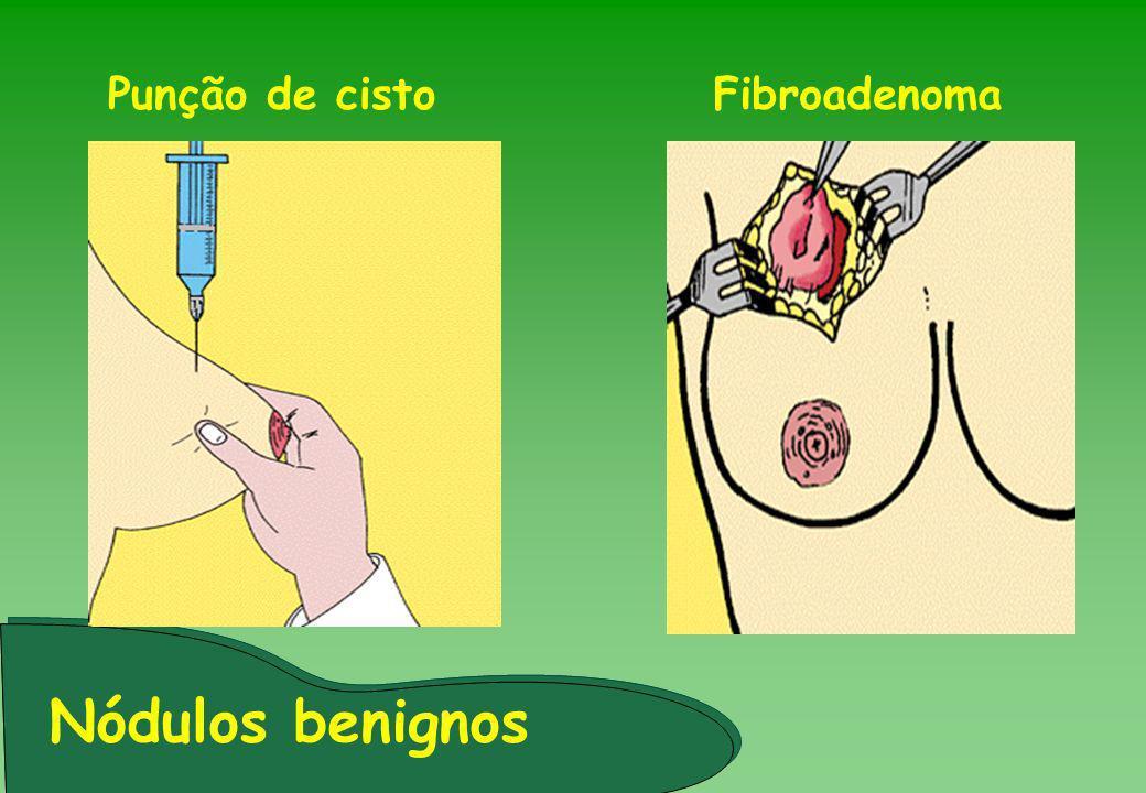 Punção de cisto Fibroadenoma Nódulos benignos