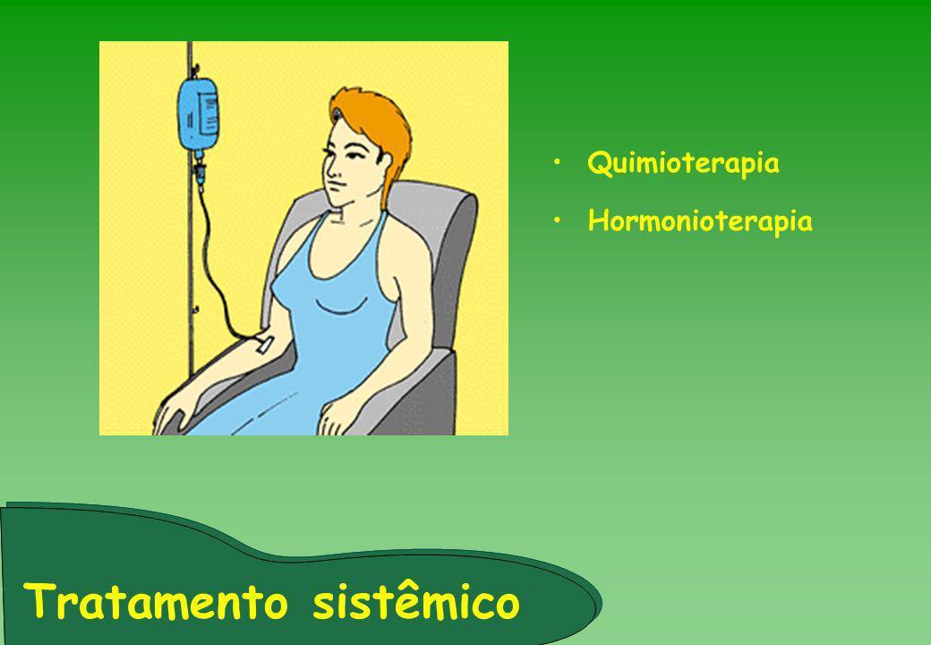 Quimioterapia Hormonioterapia Tratamento sistêmico