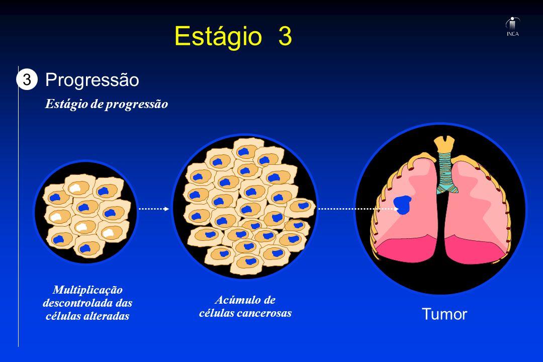 Estágio 3 Progressão 3 Tumor Estágio de progressão