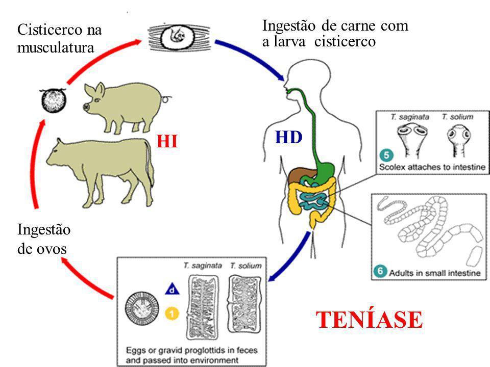 TENÍASE HD HI Ingestão de carne com Cisticerco na a larva cisticerco