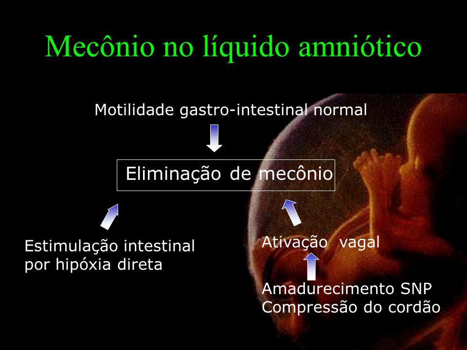 Mecônio no líquido amniótico