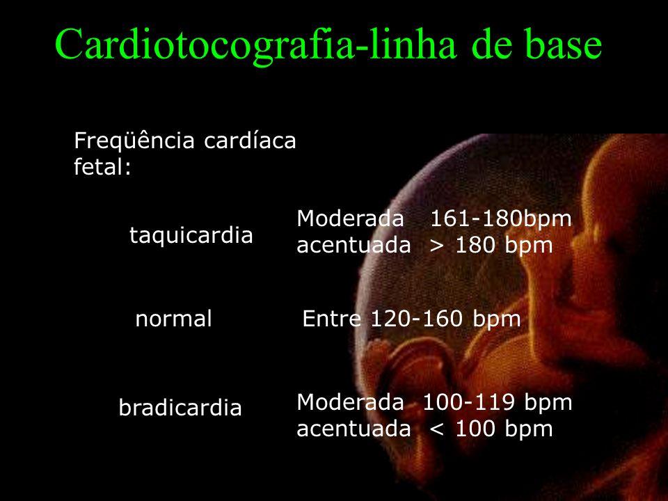 Cardiotocografia-linha de base