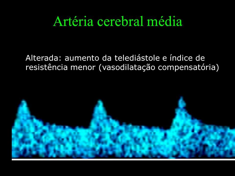 Artéria cerebral média