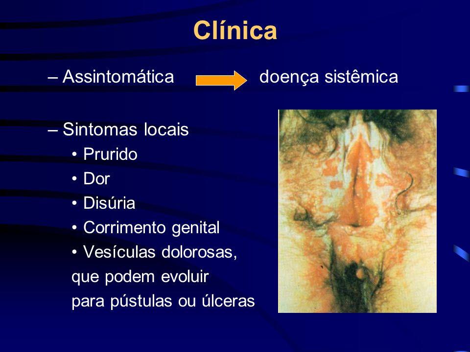 Clínica Assintomática doença sistêmica Sintomas locais Prurido Dor