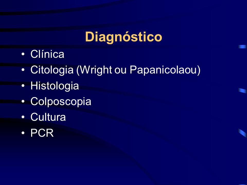 Diagnóstico Clínica Citologia (Wright ou Papanicolaou) Histologia