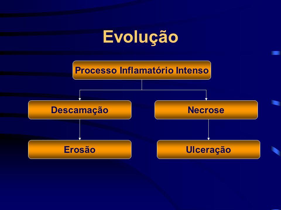 Processo Inflamatório Intenso