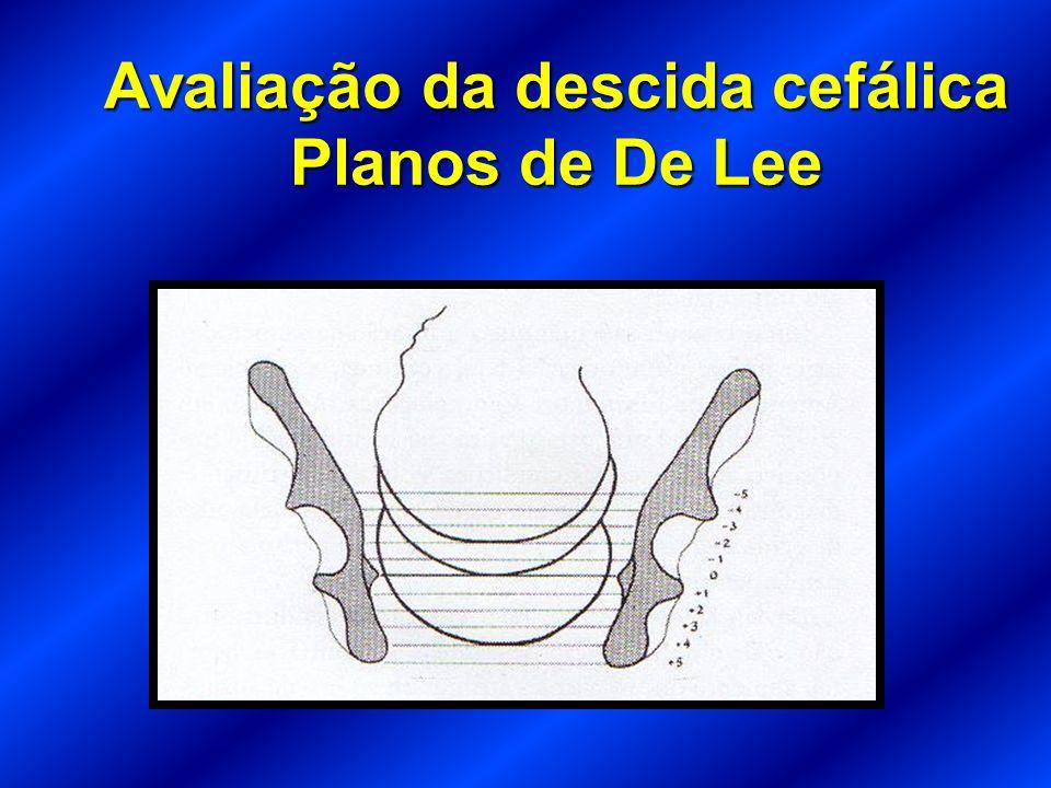 Avaliação da descida cefálica Planos de De Lee