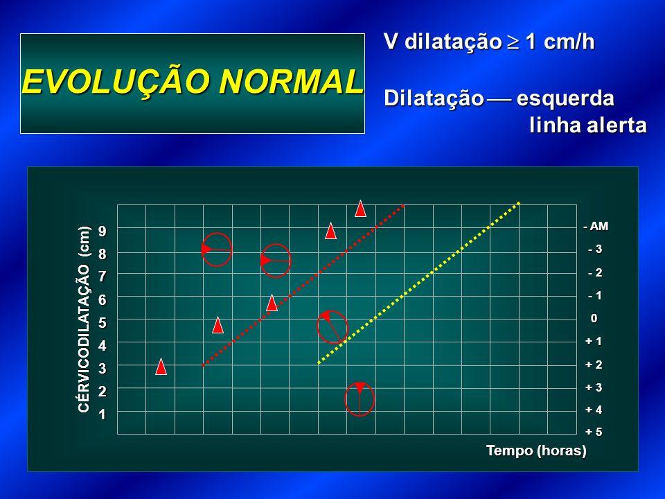 EVOLUÇÃO NORMAL V dilatação  1 cm/h Dilatação  esquerda linha alerta