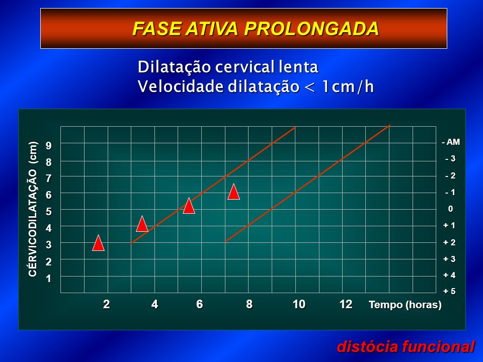 FASE ATIVA PROLONGADA Dilatação cervical lenta