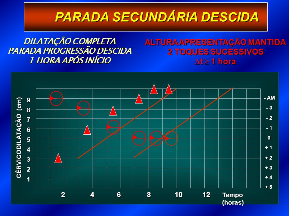 PARADA PROGRESSÃO DESCIDA ALTURA APRESENTAÇÃO MANTIDA