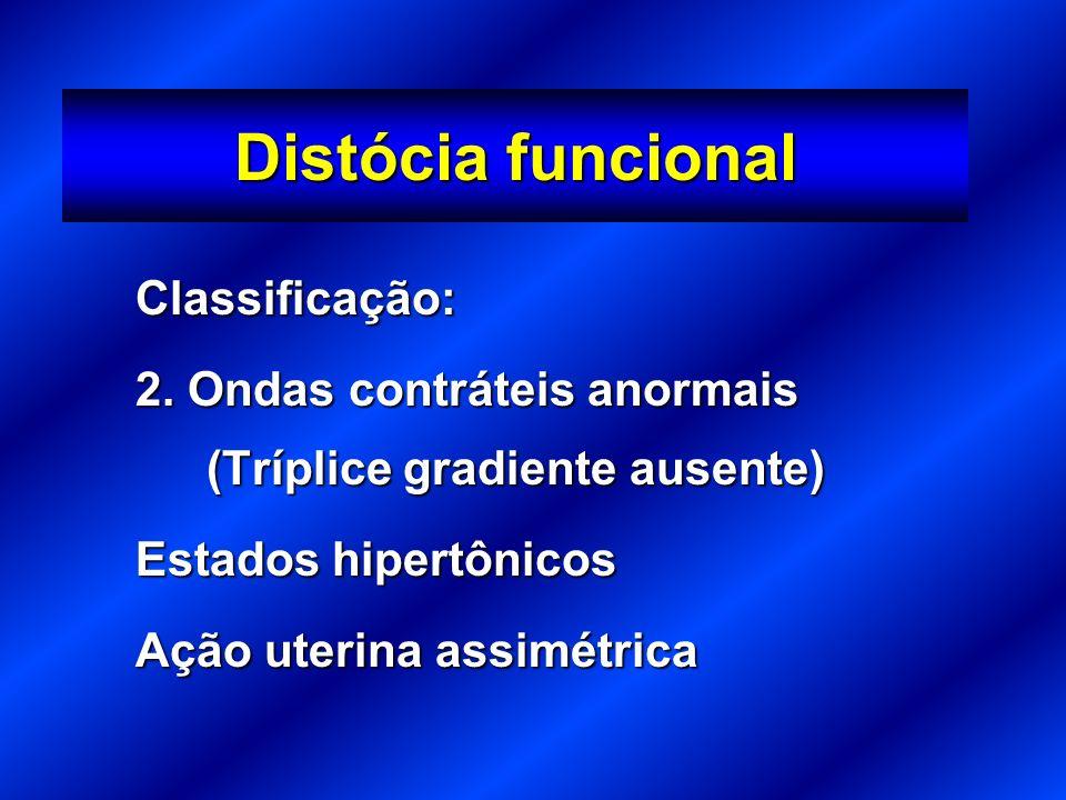 Distócia funcional Classificação: