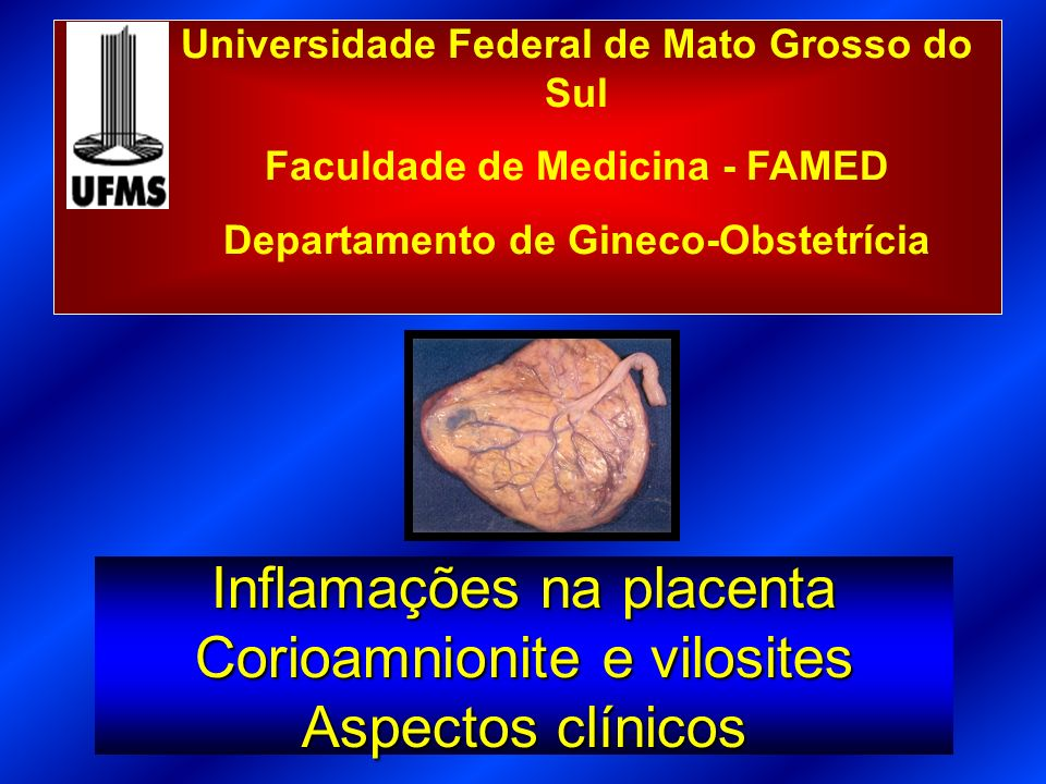 Inflamações na placenta Corioamnionite e vilosites Aspectos clínicos
