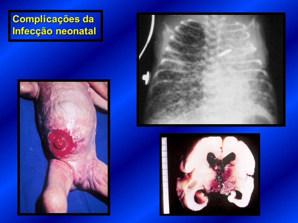 Complicações da Infecção neonatal