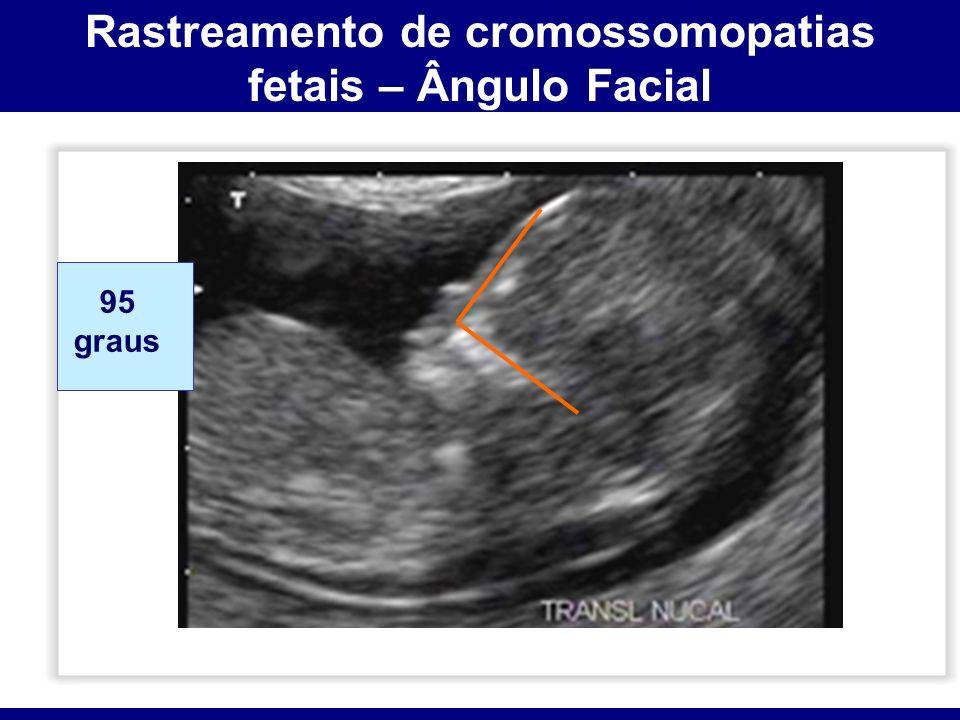 Rastreamento de cromossomopatias fetais – Ângulo Facial